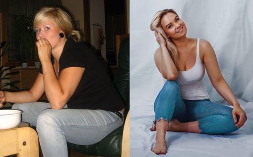 Kehopositiivinen Anni sai liikakiloista tarpeekseen ja jätti kakun syömättä - Nyt hän kertoo, kuinka sinä laihdutat viimeisen kerran