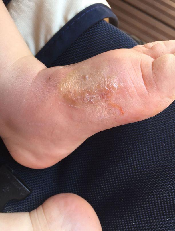 2-vuotias Oliver saa aina pahoja jälkiä hyttysen puremista. Tältä hänen jalkansa näytti päivä oikein pahan pistoksen jälkeen.