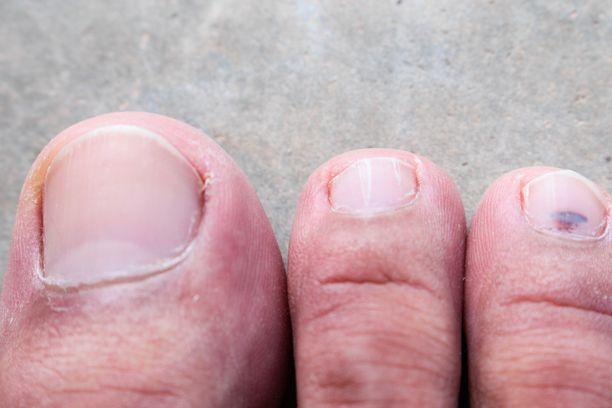 Jalkasieni voi oireilla jalassa myös näin.