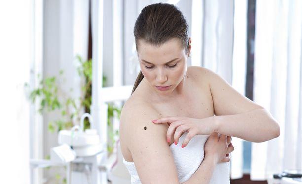 Ihosyöpä on yksi naisten yleisimmistä syöpätaudeista.