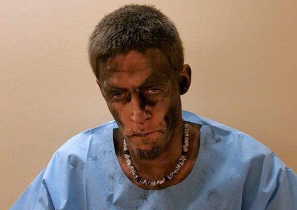 Murtovaras oli pahasti nokinen savupiippuseikkailunsa jälkeen.