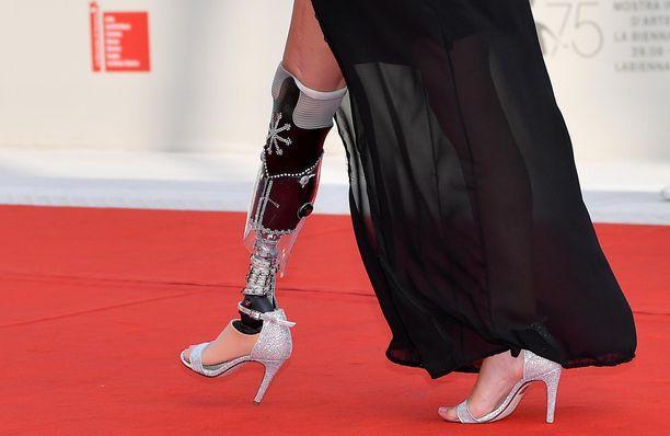 Chiaralla on bioninen jalka.