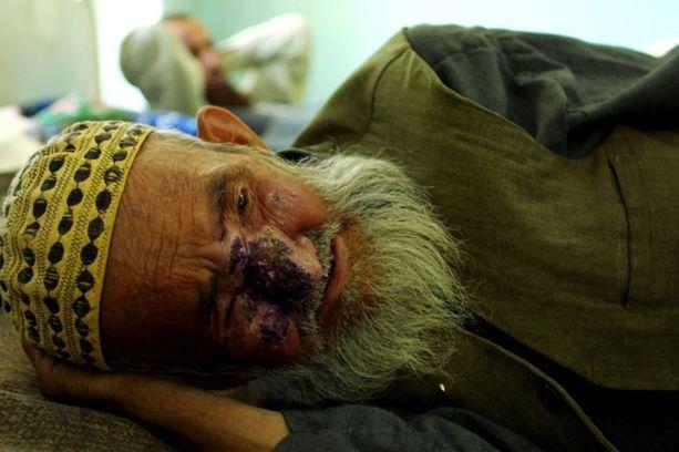 Iholeishmaniaasi aiheuttaa vakavia iho-oireita. Tämä mies makasi sairaalassa Afganistanin Kabulissa. Arkistokuva.