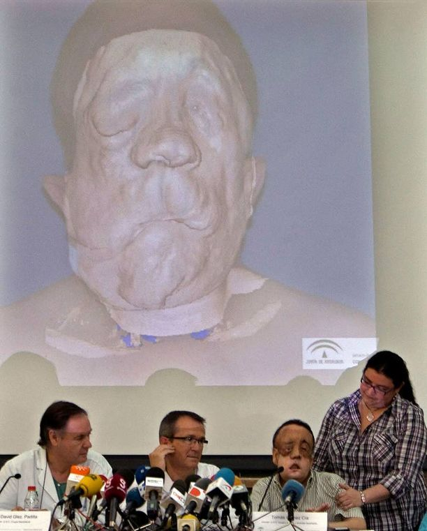 Rafaelin 30 tuntia kestäneeseen leikkaukseen osallistui yli 100 lääkäriä.