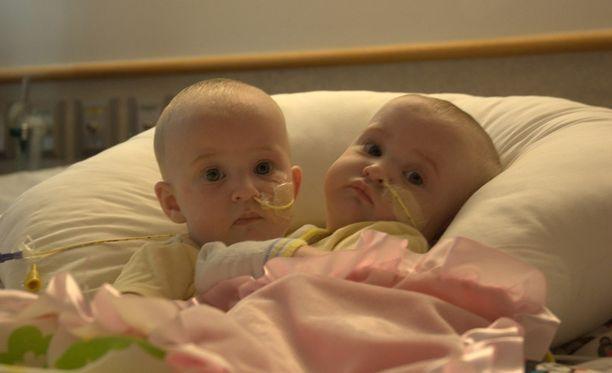 Aallison ja Amelia pääsivät aloittamaan uuden elämän leikkauksen jälkeen.