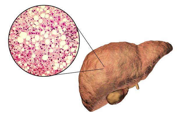 Rasvamaksa on yhä yleistyvä vakava sairaus.