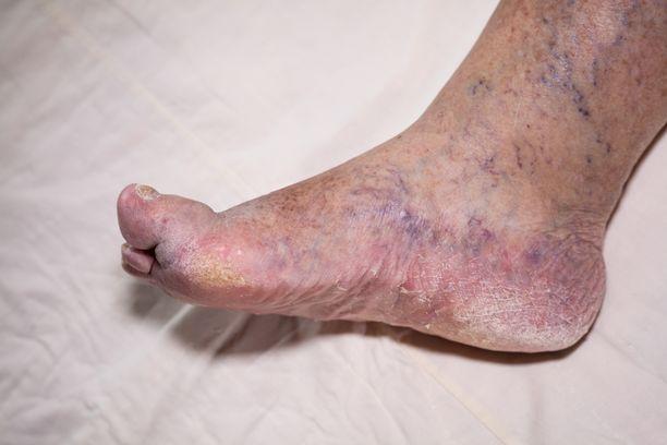 Diabeetikoiden jalkoihin voi tulla monenlaista vaivaa.
