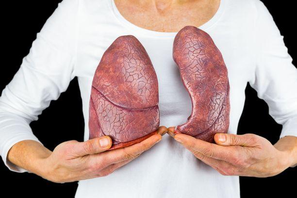 Suomessa kliininen havainto on, että myös tupakoimattomien naisten keuhkosyöpätapaukset ovat lisääntyneet.