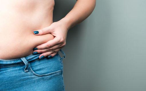 Kannattaako patukalla laihduttaa? Painonhallintalääkäri: Raju metodi