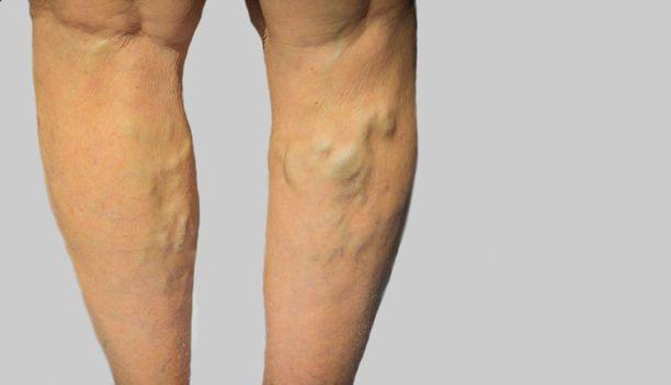 Suonikohjujen hoitoon ollaan kehittämässä katetriablaatiohoitoja, jotka eivät vaadi puudutusta.