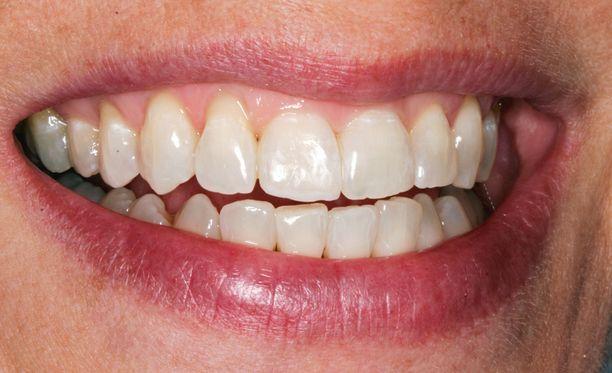 Lopputulos: Näin hyvältä hampaat näyttävät hoidon jälkeen.