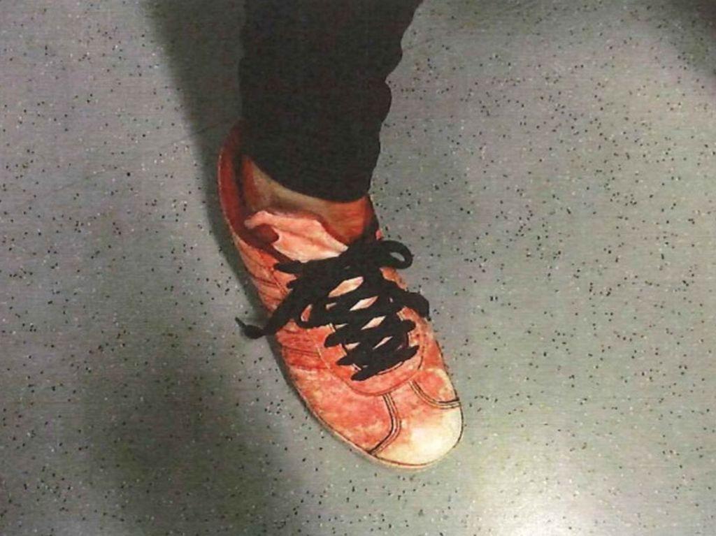 Poliisi kuvasi 15-vuotiaan veriset tennarit kiinnioton jälkeen.